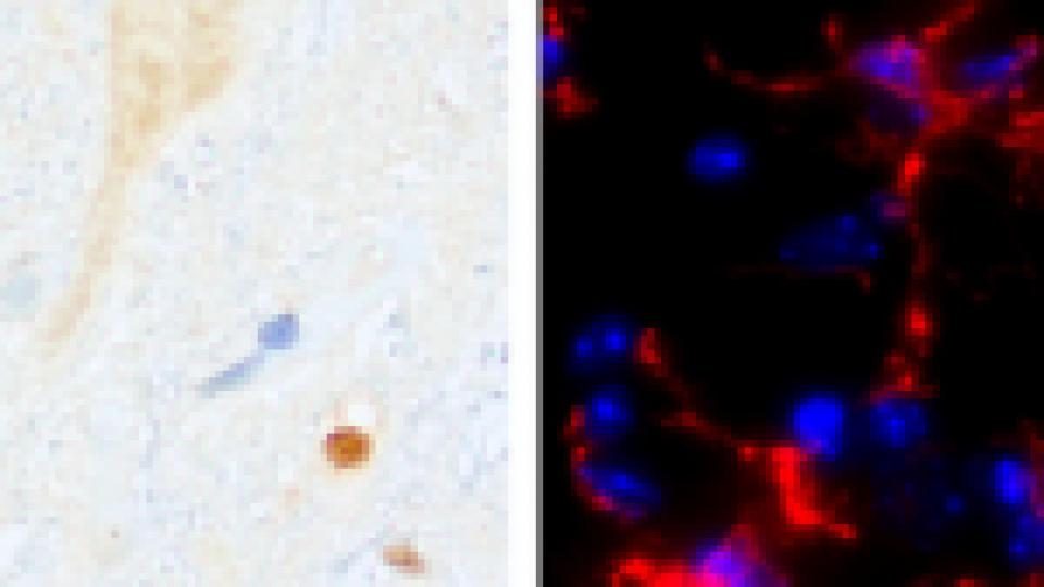 Sclérose latérale amyotrophique: quelles pistes thérapeutiques?
